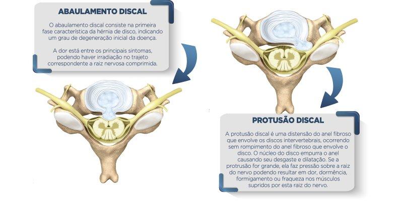 abaulamento e protusão discal